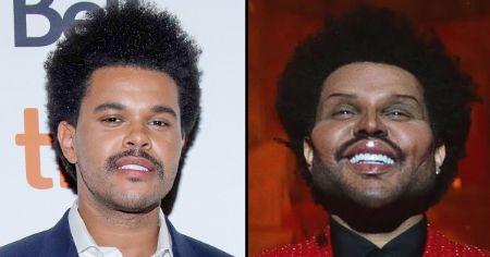 The-Weeknd plastic surgery rumors