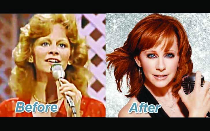 Reba McEntire Plastic Surgery
