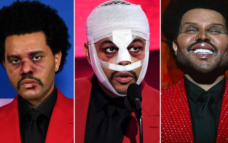 Did The Weeknd Get Plastic Surgery? Before & After