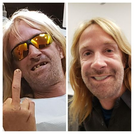 Erik Cowie Teeth Before and After (1)