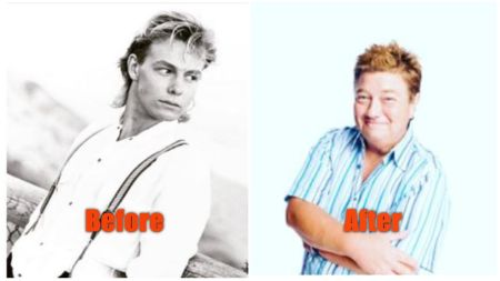 Jason Donovan Before & After Hair Transplant