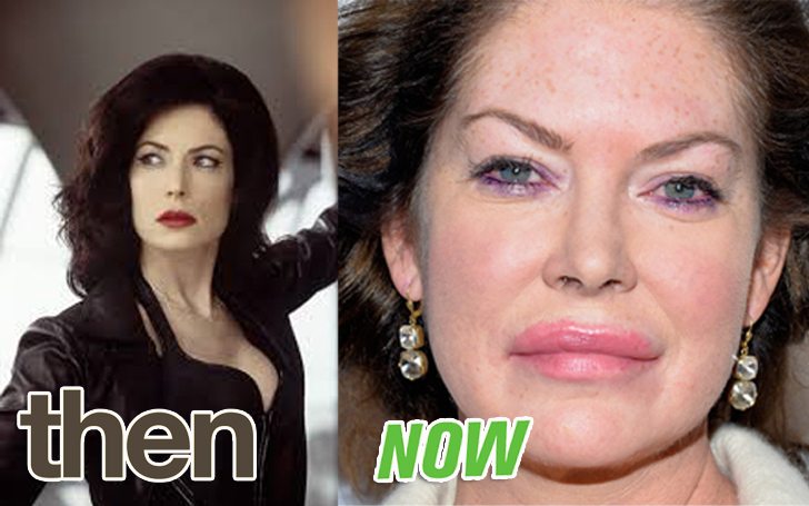 Lara Flynn Boyle Plastic Surgery Facts!