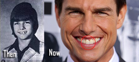 'The Outsiders' actor Tom Cruise Middle Tooth Details