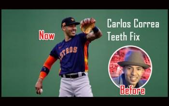 Carlos Correa Teeth Fix