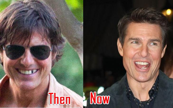 Tom Cruise Teeth Facts!!