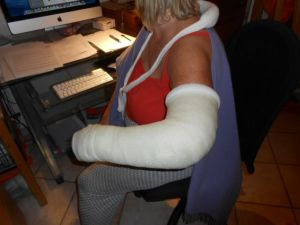 CRPS arm in cast