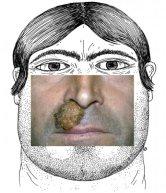 Le kerion de la barbe