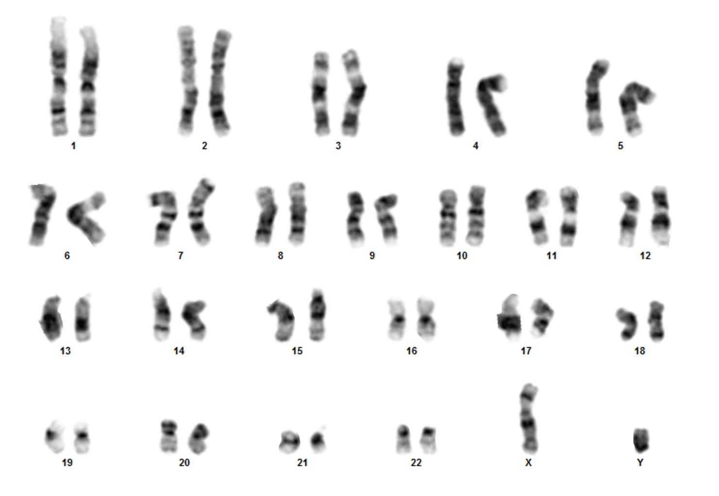 Karyotype service for human cells