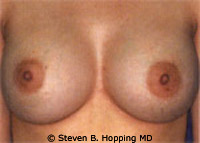 Dr. Stephen Hopping Breast Augmentation After Photo