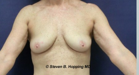 Dr. Stephen Hopping Breast Fat Augmentation Before Photo