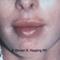 Dr. Stephen Hopping Lip Enhancement After Photo