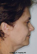 Dr. Stephen Hopping Facelift Before Photo