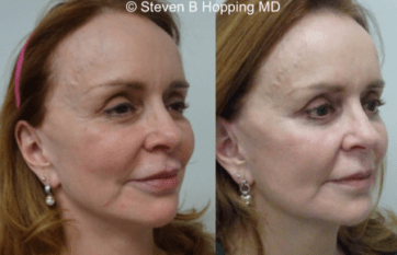 Thread Facelift | reduces sagging around the cheeks and jawline