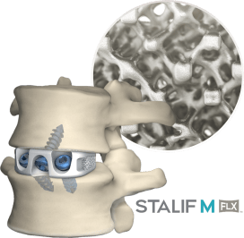 STALIF-M-FLX-Device-and-Spine-Oblique