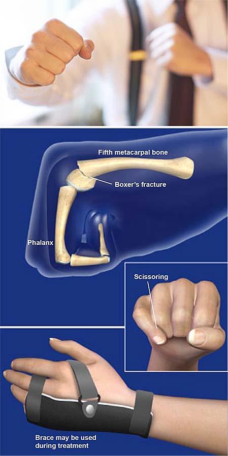Boxeador-fractura
