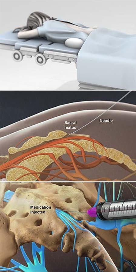 Inyección de esteroides caudal-epidural
