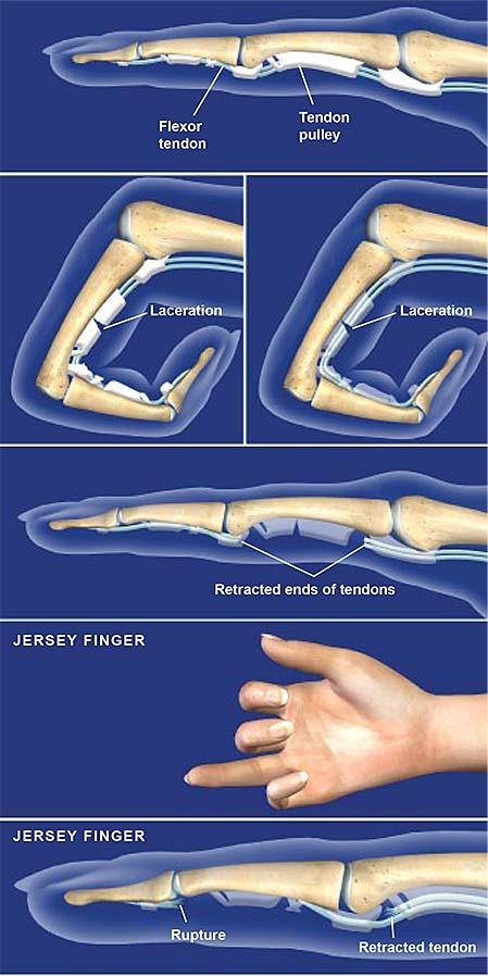Lesiones del flexor del tendón