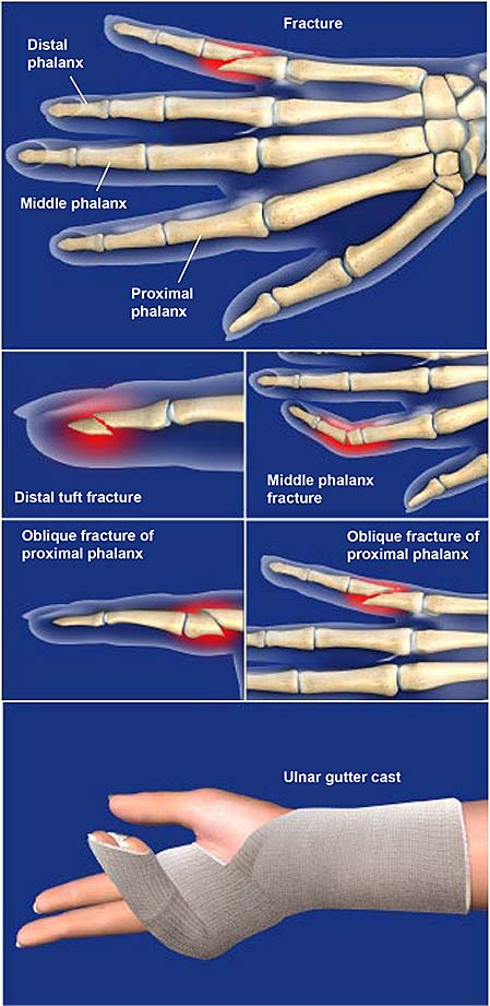 fractures-of-the-finger