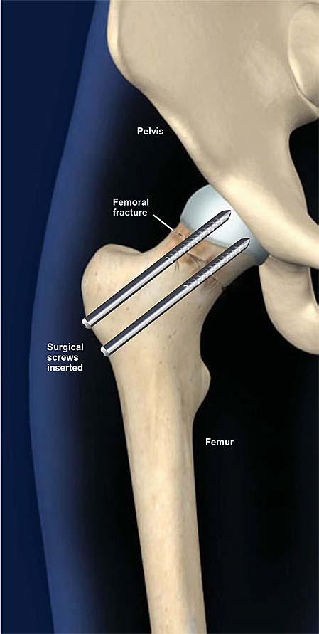hip-fracture-treatment-with-surgical-screws