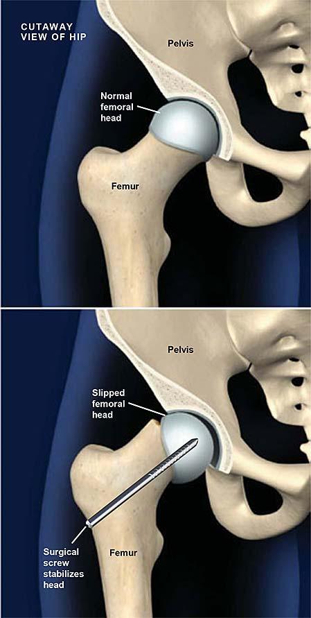 internal-screw-fixation-for-slipped-capital-femoral-epiphysis-scfe