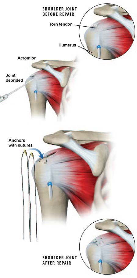 Mini-open-rotator-cuff-repair