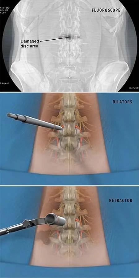 Mínimamente invasivo-tlif-transforaminal-lumbar-inter-cuerpo-fusión-1