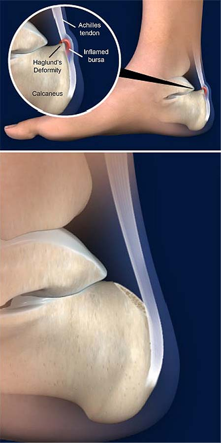resection-of-haglunds-deformity