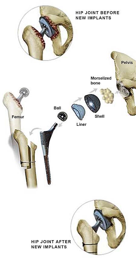 Cirugía de cadera de revisión