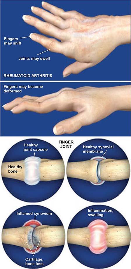 Rheumatoid Arthritis Ra Of The Hand Central Coast Orthopedic Medical Group