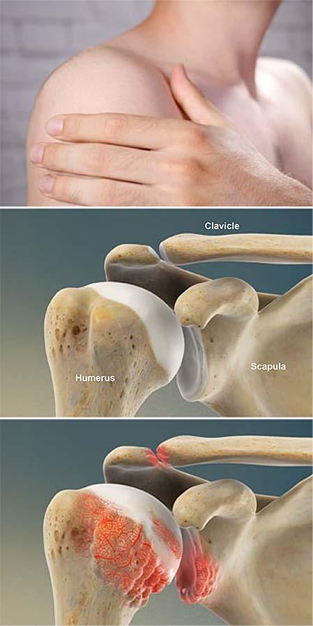 rheumatoid-arthritis-ra-of-the-shoulder