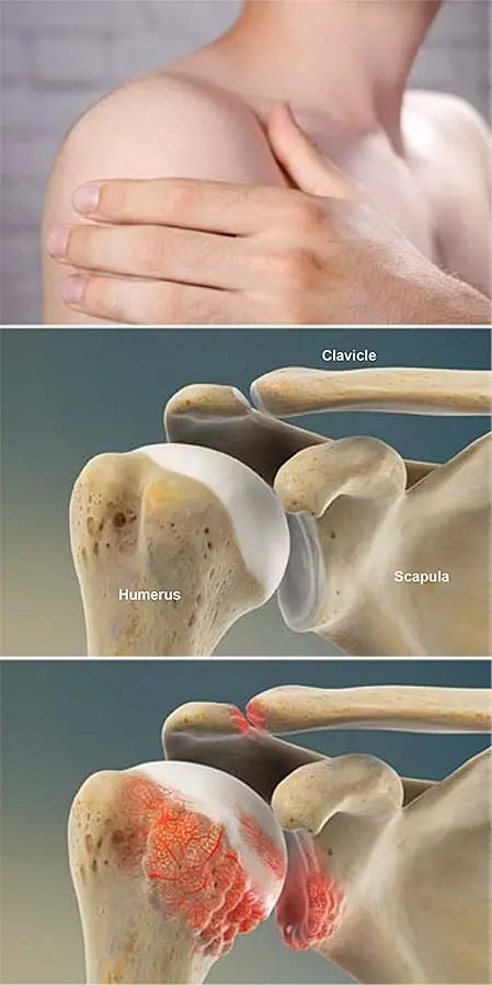 Artritis Reumatoide (AR) del Hombro - Grupo médico de..