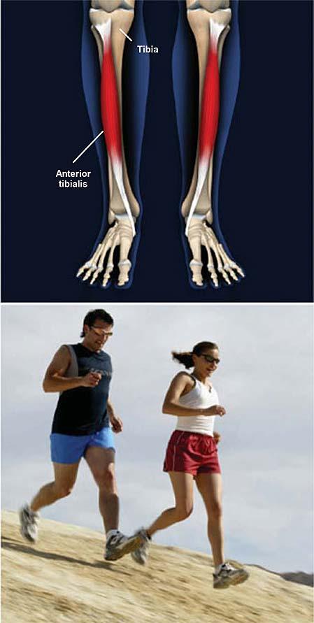 shin-splints-medial-tibial-stress-syndrome