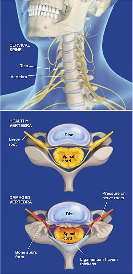 Espinal-estenosis-cervical-1