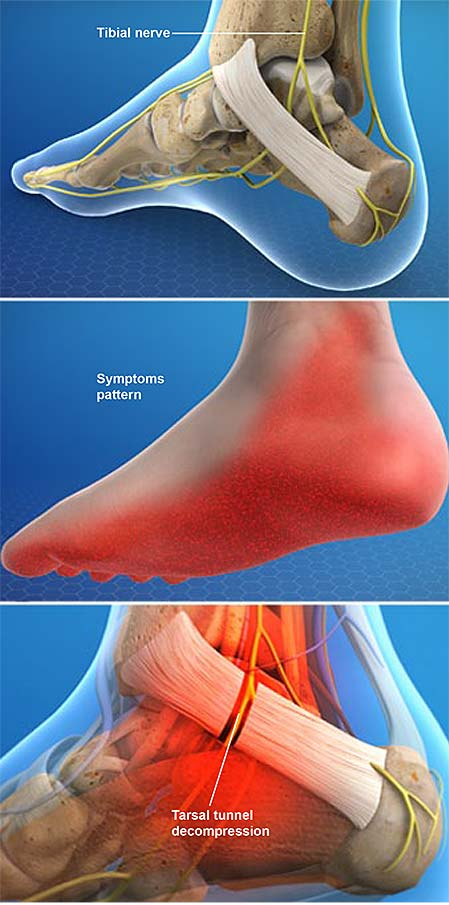 tarsal-tunnel-syndrome-posterior-tibial-neuralgia