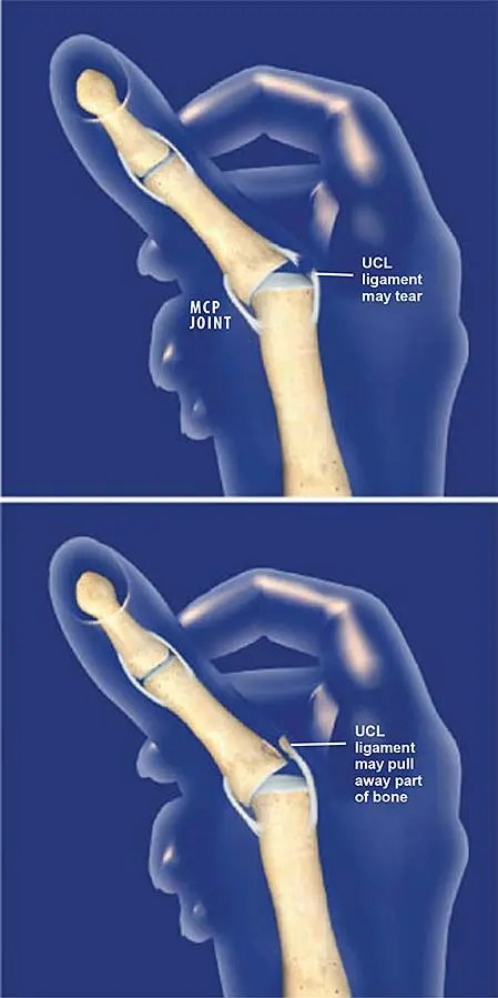 Thumb Ulnar Collateral Ligament UCL Injury Central