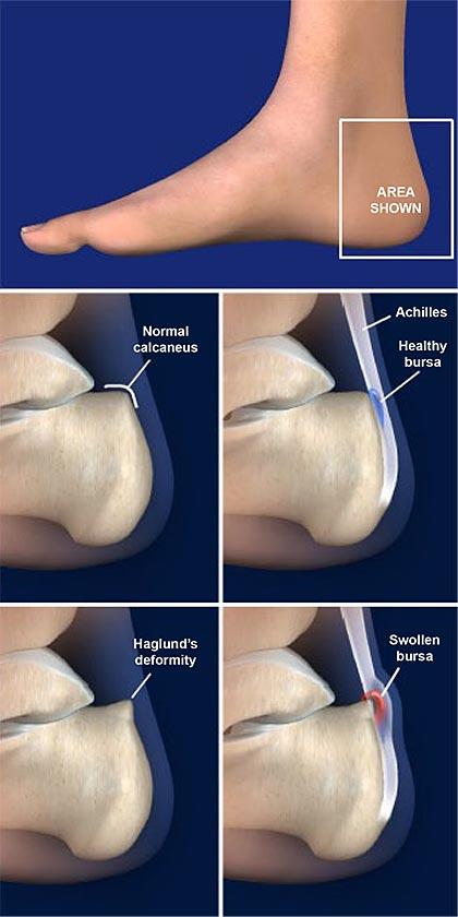 Haglund's-Deformity-(Retrocalcaneal-Bursitis)