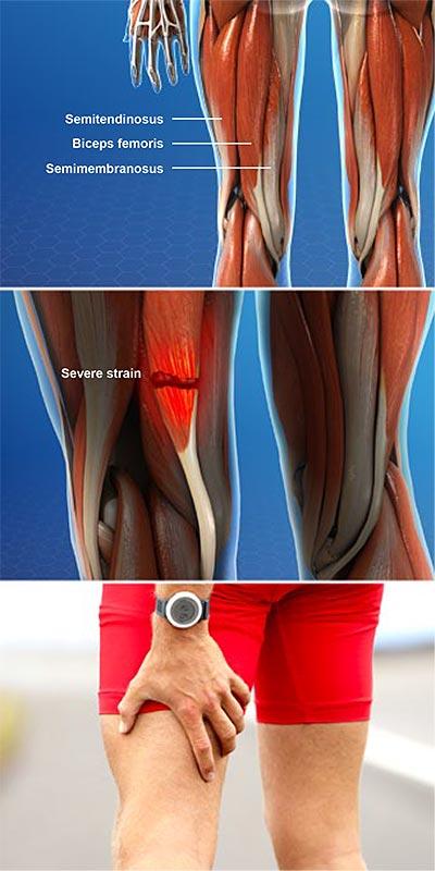 Lesiones en el músculo isquiotibial
