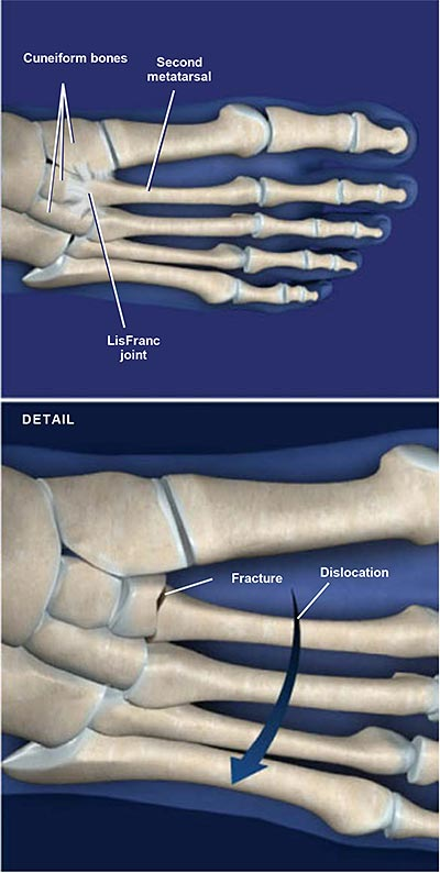 LisFranc-(Midfoot)-Fracture-Dislocation
