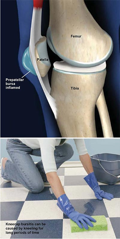 rodilla con piel infectada