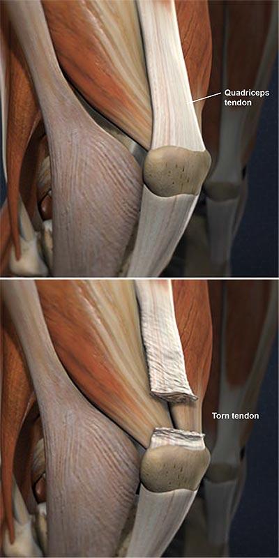 Quadriceps-Tendon-Tear