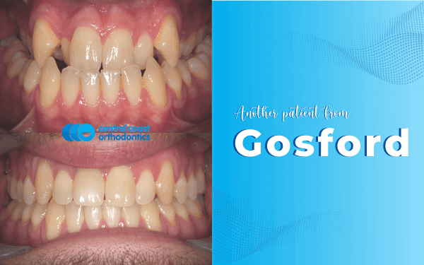 Braces and Jaw Surgery Gosford - Central Coast Orthodontics