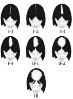 Alopécie Femmes