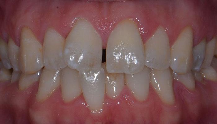 Closing Gaps | Central Orthodontics