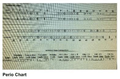 Perio Chart