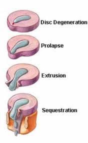Protrusion Discale Temps Guerison : protrusion, discale, temps, guerison, Centre, Chiropratique, Beaulieu, Hernie, Discale