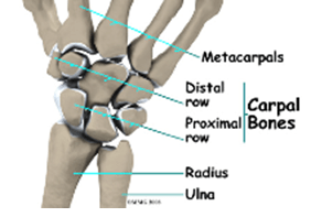 TFCC Injury