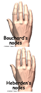 bouchards-nodes-heberden-nodes