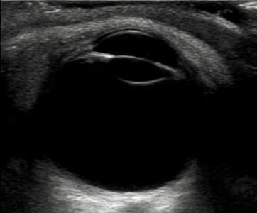 Echographie rétinienne