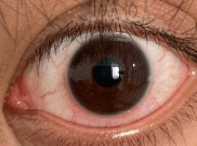 Oeil rouge, compatible avec le diagnostic de kératite, conjonctivite et uvéite herpétique.