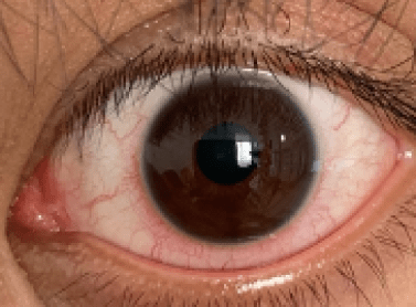 Oeil rouge, compatible avec le diagnostic de kératite, conjonctivite et uvéite zoostérienne.